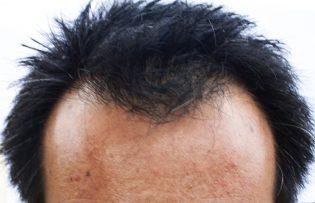 alopecia 3