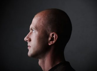 Micropigmentación Capilar para resolver el problema de la alopecia.