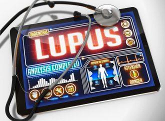 El lupus ya tiene cura