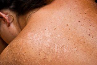 12429781 - closeup of sun burned skin