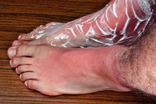 20995377 - sunburn legs