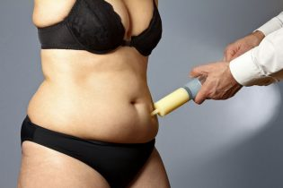 53552830 - body of a middle aged fat woman in underwear with man's hands holding a syringe with fat sucked out of the adipose tissue of her abdomen, liposuction
