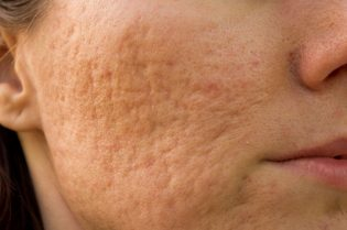 21045537 - girl with problematic skin and scars from acne